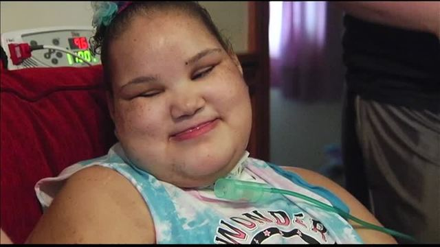 Girl Fighting Rare Disorder Celebrates 15th Birthday