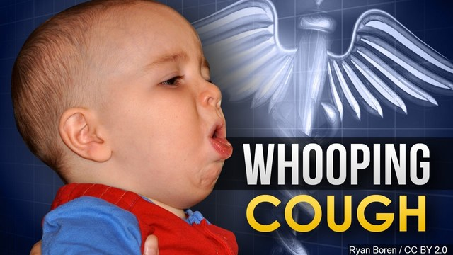 State health officials investigating increase in whooping cough cases in Indiana